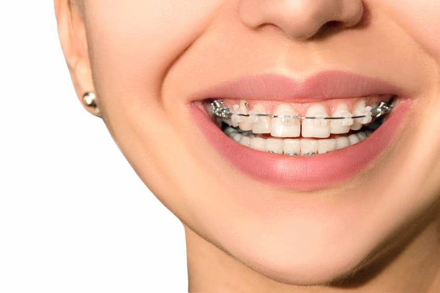 Best-dentist-in-gurgaon