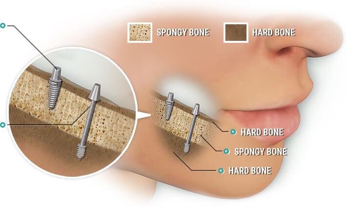 dental-implants-in-gurgaon
