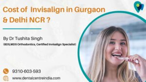 Cost  of  Invisalign in Gurgaon & Delhi