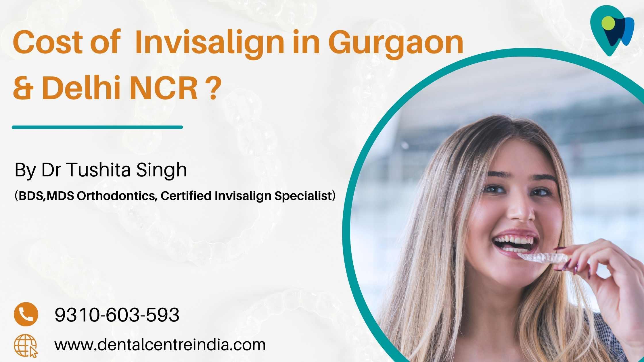 Cost  of  Invisalign in Gurgaon & Delhi
