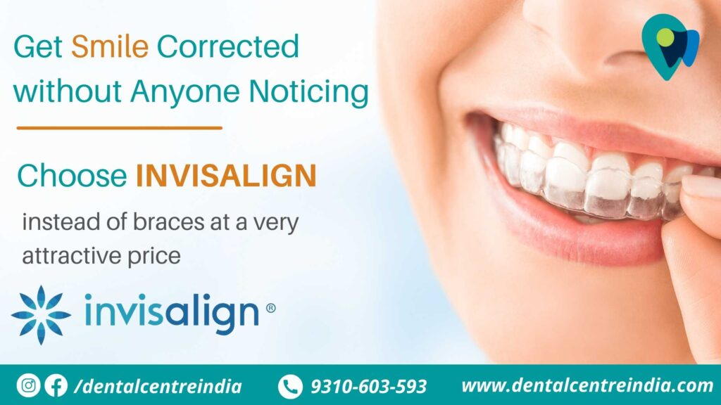 invisalign-cost-in-delhi-NCR